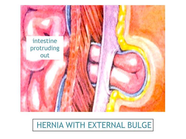 symptomen hernia onderrug